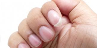 Brüchige Nägel Fingernagel Hilfe Ursachen